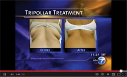 Alpha-Weight-Orlando-Treats Cellulite Video link