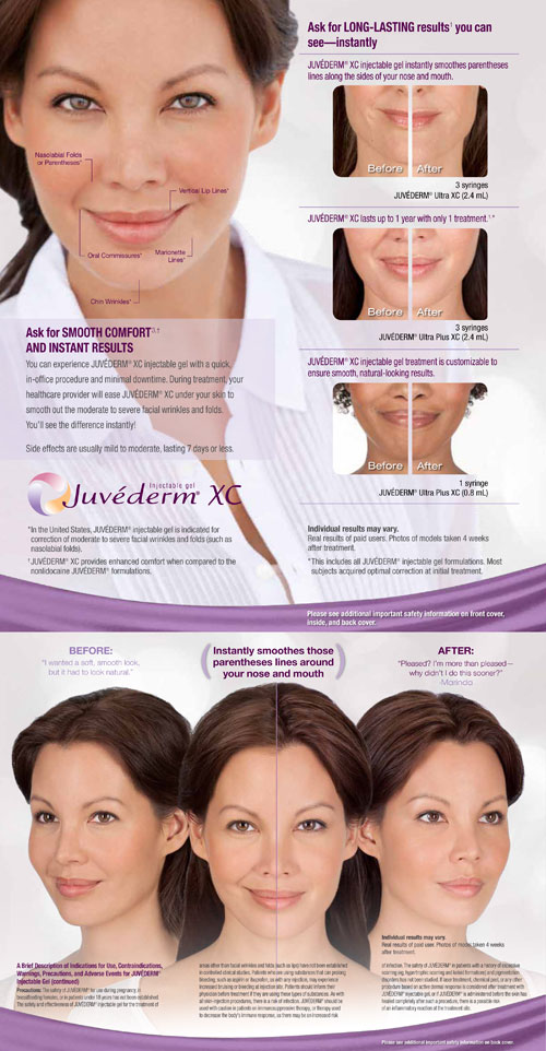 Alpha-Weight-and-Wellness-Orlando-Juvederm-Main