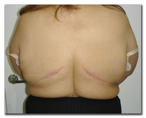panniculectomy-after